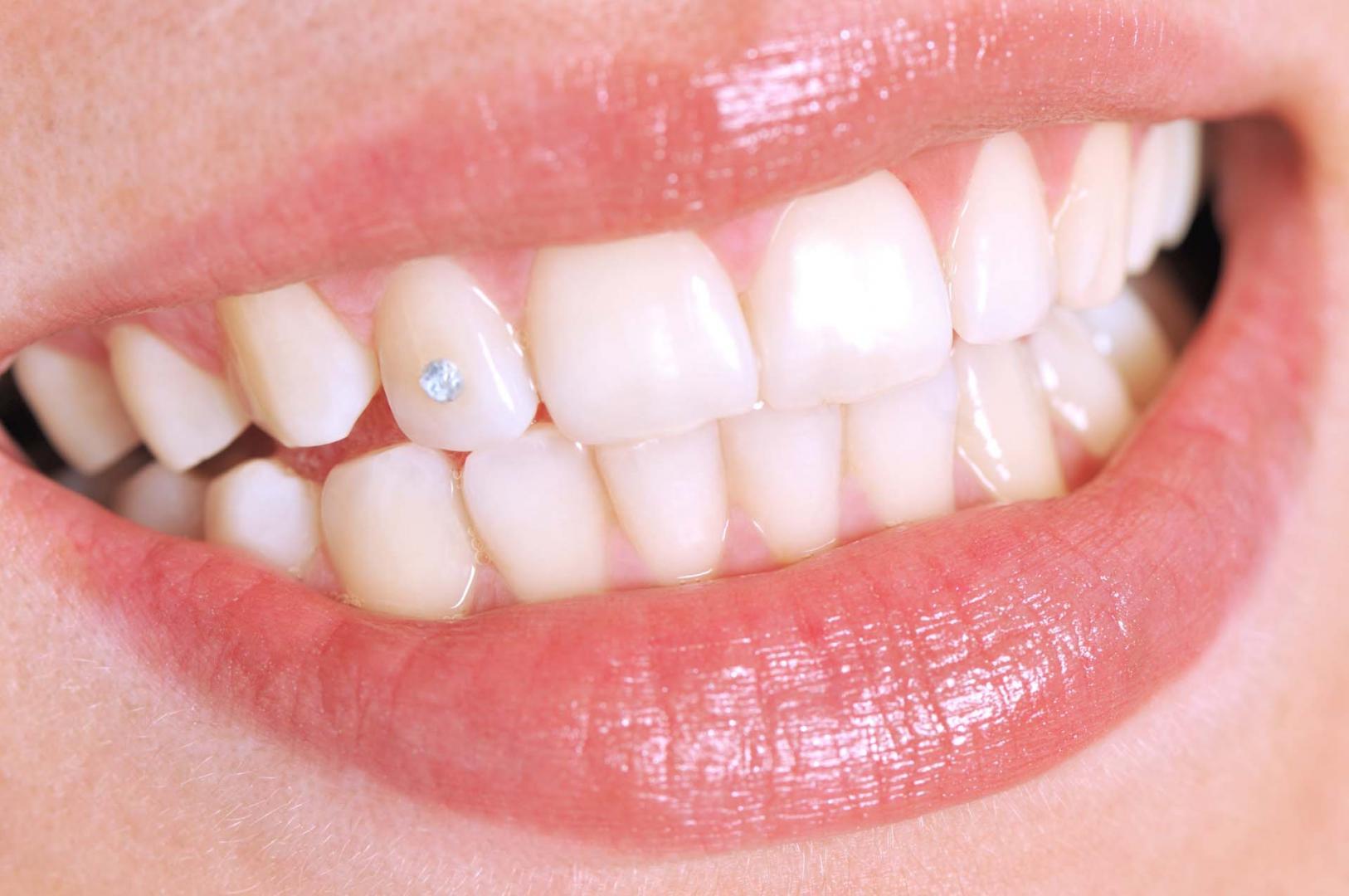 Prothèse dentaire : quels sont ses différents types amovibles ?